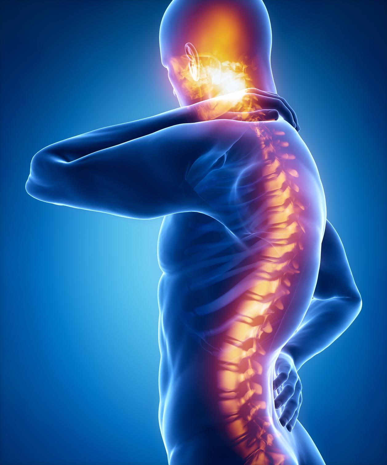 Wirbelsäulenschmerzen im Sakral- und Halsbereichskonzept