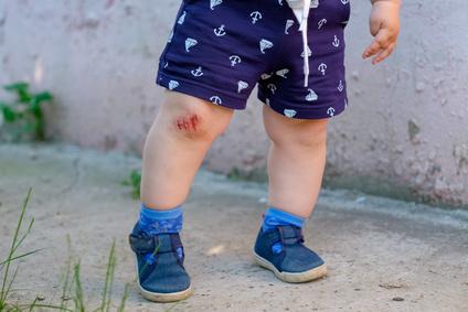 Kleinere Wunden schnell behandelt mit Johanniskraut (Hypericum perforatum)